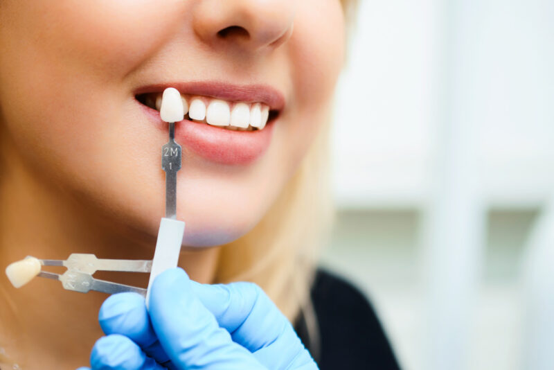 3 Common Types of Cosmetic Dentistry to Consider for a Fabulous Smile 1