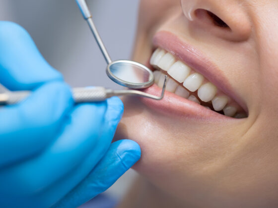 Are Dental Fillings Permanent? 5