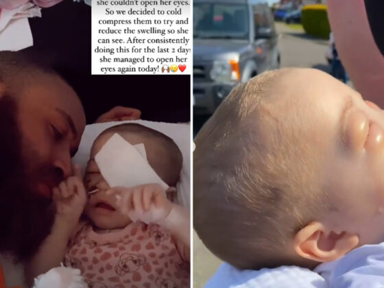 Ashley Cain 'counts his blessings' as baby Azaylia manages to open her eyes after two days of not being able to see