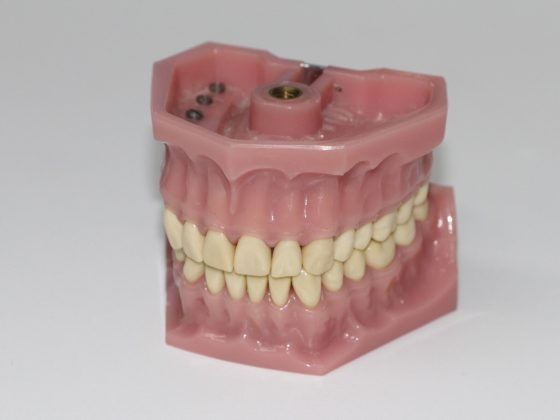 5 Signs You Need Denture Repairs Right Now 6