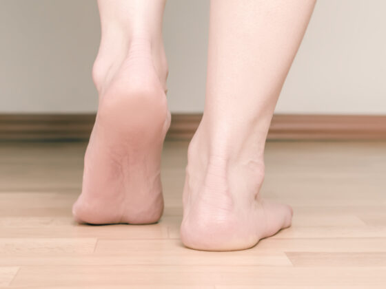 Heel Pain from Running? 6 Tips for Relief 3