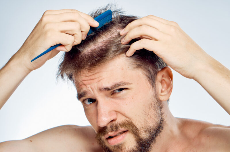 The Different Types of Hair Loss in Men 1