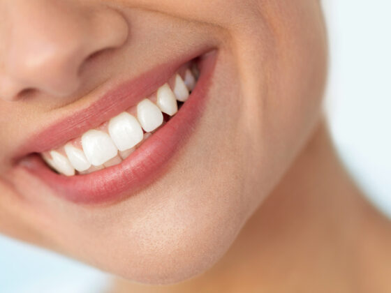 This Is How to Get Super White Teeth the Right Way 6