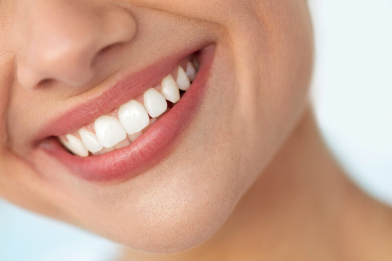 This Is How to Get Super White Teeth the Right Way 1