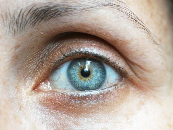 What Are the Best Vitamins for Eye Health? 6