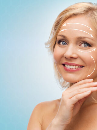 What Are the Different Types of Facelifts? 3