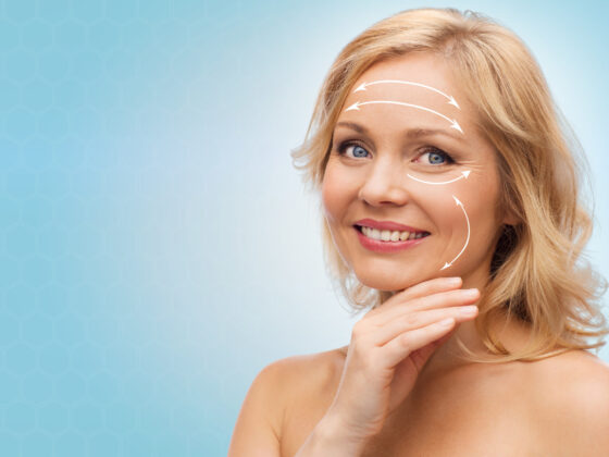 What Are the Different Types of Facelifts? 2