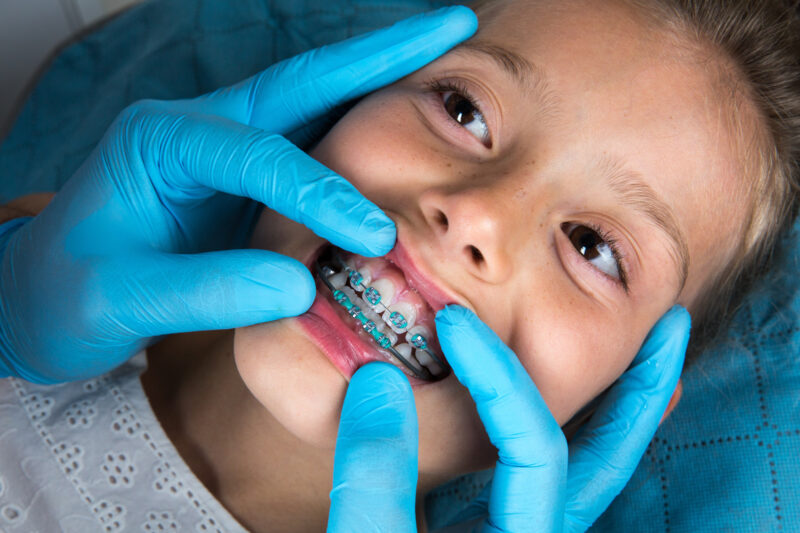 What Is the Average Cost of Braces for Kids? 1