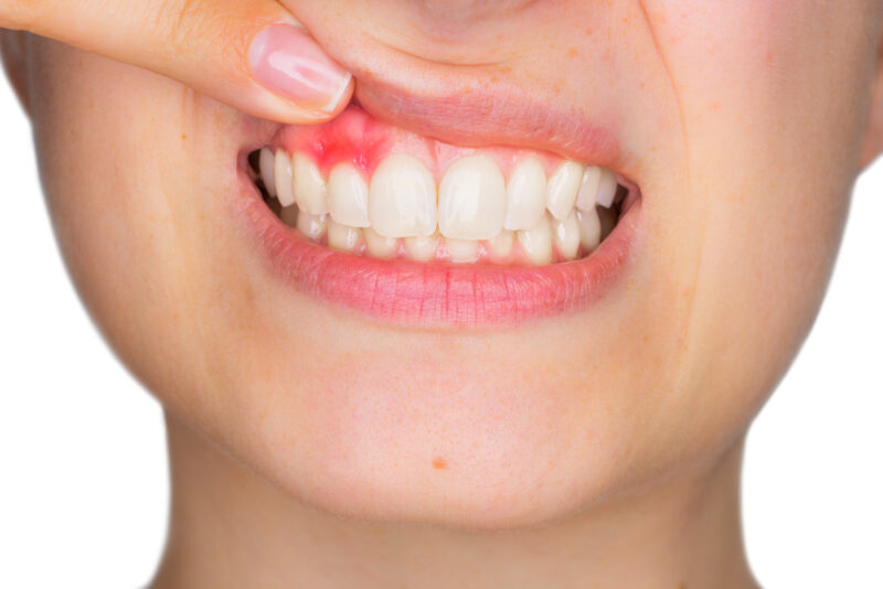 Can Gingivitis Be Reversed? A Dentist's Guide to Your Health 1