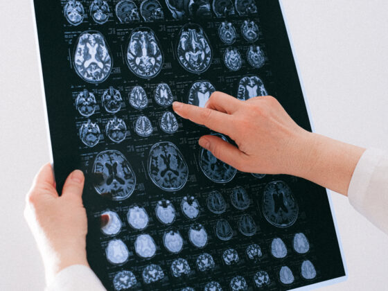Everything You Should Know Before Consulting A Neurologist 4