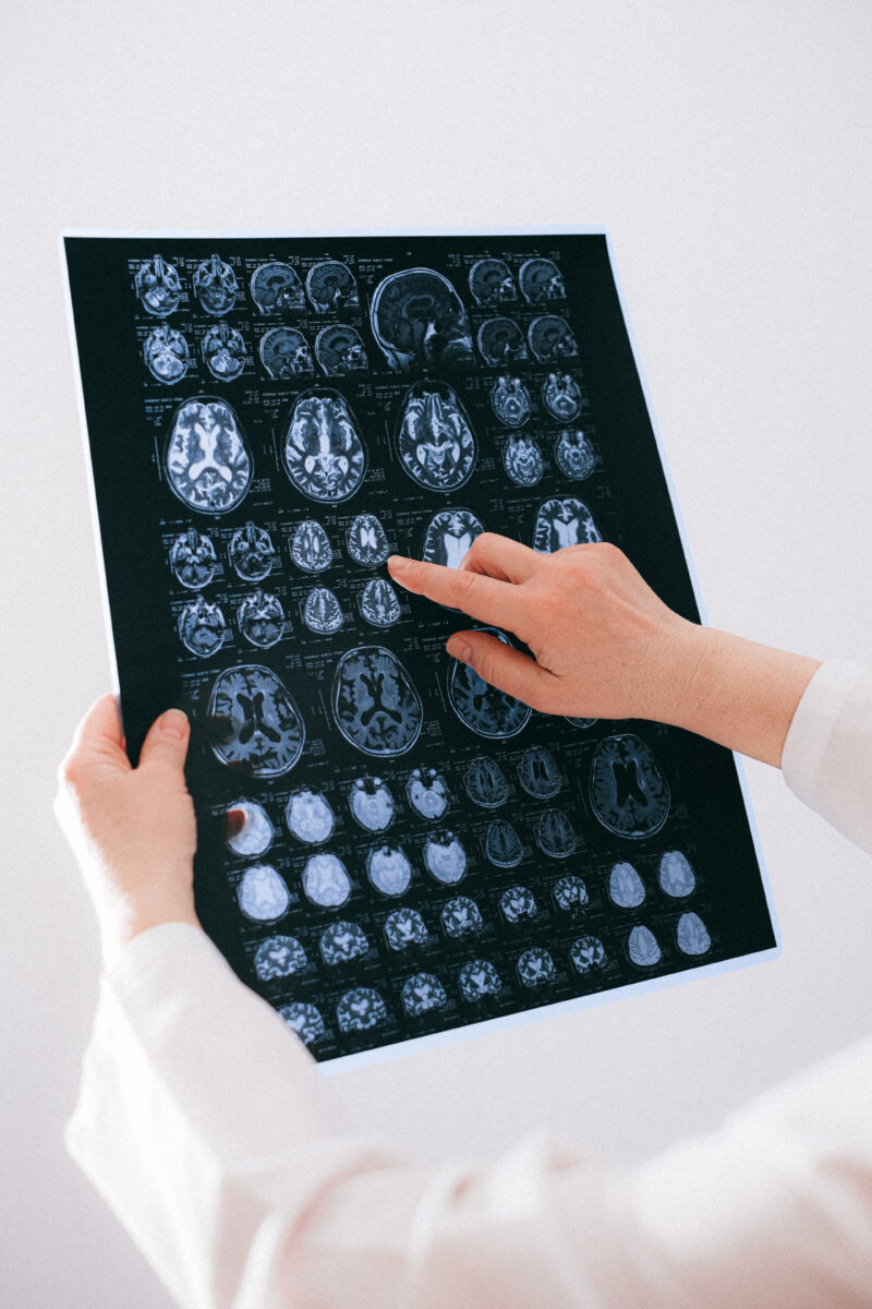 Everything You Should Know Before Consulting A Neurologist 1
