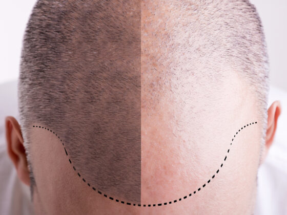 Everything You Need to Know About Scalp Micropigmentation 7